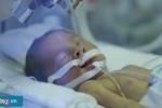 Điều chưa biết về những em bé sinh non