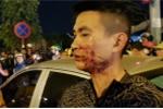 Sau va chạm giao thông, tài xế ô tô lao vào đánh đôi vợ chồng trẻ