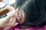 Học sinh bị xách rách tai khâu 4 mũi ở Thanh Hóa, hiệu trưởng nói 'nghe phong thanh'