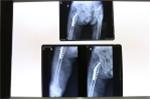 Ngã trong lúc đi vệ sinh, cụ bà 105 tuổi bị gãy mấu chuyển xương đùi phải