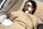 Cháy phim trường, nữ diễn viên 'Anh hùng xạ điêu' bỏng nặng