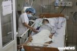 Pha cồn thành rượu, bệnh nhân chết thảm do ngộ độc methanol
