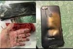 Clip: Vừa sạc vừa dùng điện thoại, thanh niên Nam Định bị nổ cụt bàn tay