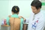 Phẫu thuật cột sống bị vẹo hơn 100°, thiếu nữ cao lên 7cm