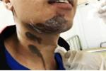 Người đàn ông bị bỏng vì bột thông hầm cầu văng lên người