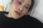 Tranh nhau đĩa bánh xèo, nam thanh niên đánh cô gái chảy máu mũi phải nhập viện