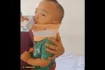 Clip: Sức khỏe bé 1 tuổi bị bố 'ngáo đá' ném từ mái nhà xuống giờ ra sao?