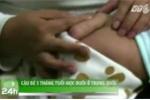Trung Quốc: Cậu bé 5 tháng tuổi mọc đuôi
