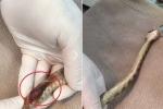 Rắn bị thương nặng, lòi tim ra ngoài được bác sỹ cứu sống ngoạn mục