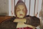 Căn bệnh quái ác ăn mòn khuôn mặt của cụ bà ở Thái Bình