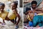 Clip: Chị em sinh đôi dính liền thân dưới yêu chung chàng trai kém 9 tuổi