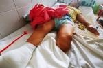Người phụ nữ 32 năm không thể đi đứng, phải cưa chân vì bệnh xương thủy tinh