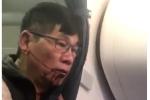 Hành khách gốc Việt bị United Airlines đánh đập dã man có cơ thắng kiện 'nhiều triệu USD'