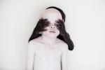 Xót xa số phận những trẻ bạch tạng bị giết hại làm bùa chú và độc dược
