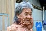 Người đàn ông mọc hàng nghìn khối u như bong bóng khắp cơ thể