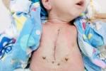 Bác sỹ căng mình 5 tiếng cứu bé sơ sinh bị tim bẩm sinh dạng nặng nhất