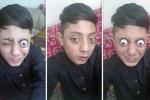 Kinh ngạc 'dị nhân' 14 tuổi có biệt tài... kéo mắt ra khỏi tròng