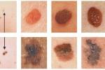 Ung thư da có những triệu chứng gì?