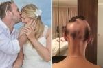 Lo nghĩ chuẩn bị đám cưới, cô dâu rụng tóc đến trọc lóc cả đầu