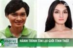 Việt Nam có thể thực hiện được phẫu thuật chuyển giới