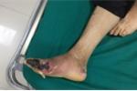 Kinh hoàng biến chứng tiểu đường đâm đinh vào chân không biết đau