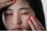 Phẫu thuật ở thẩm mỹ viện chui, nhiều người bị thủng mũi, mù mắt, liệt người