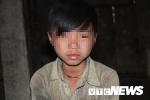 Vùng đất trẻ em có hai 'của quý' ở Hà Giang: Bệnh viện Nhi Trung ương vào cuộc truy nguyên nhân những đứa trẻ bị 'giời hành'