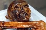 Xác ướp người băng bị nguyền rủa khi còn sống có thể bị bệnh tim
