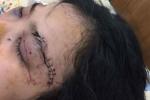 Cô gái cầm đầu 20 giang hồ 'truy sát', cắt tai thiếu nữ ở Sài Gòn
