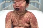 Sử dụng thuốc bừa bãi, trẻ bị dị ứng nguy hiểm tính mạng