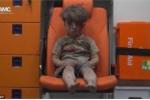 Hình ảnh cậu bé Syria mặt bết máu ngồi đờ đẫn trên xe cứu thương khiến thế giới bàng hoàng