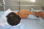 Em bé 8 ngày tuổi phải thay máu hoàn toàn do bị vàng da