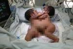 Hai bé sơ sinh dính liền bụng, ngực giờ ra sao?