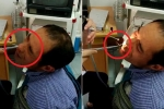 Rùng mình clip gắp con đỉa sống ngoe nguẩy ra khỏi mũi người đàn ông
