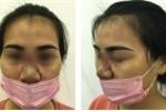 Phẫu thuật thẩm mỹ chui ở spa, cô gái bị biến chứng thủng mũi
