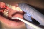 Nhổ răng số 8 có thể gặp những biến chứng nguy hiểm gì?