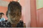 Clip: Cậu bé 'người sói', mắc bệnh hiếm khiến lông lá mọc khắp mặt