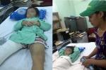 Mẹ và cha dượng đánh gãy chân bé trai ở Sài Gòn