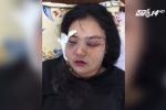 Thực hư cô gái bị truy sát, cắt tai vì tố giác người ăn cắp xe máy