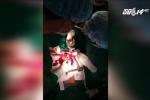 Nạn nhân bị vỡ tim do tai nạn giao thông được cứu sống thần kỳ