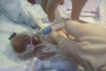 Sức sống kỳ diệu của em bé sinh non khi mới 25 tuần, cơ thể chỉ to bằng quả bóng tennis
