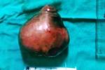 Bệnh nhân có khối u xơ tử cung khiến bụng to như mang thai