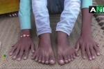 Bé trai có 12 ngón tay, 12 ngón chân bị người thân đòi hiến tế