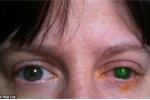 Mù mắt vì đeo kính áp tròng xuống hồ bơi