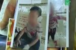 Nghi vấn bé trai 4 tuổi ở Bình Dương bị cha dượng bạo hành