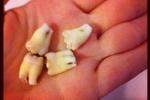 Video: Xem cận cảnh quá trình nhổ răng số 8