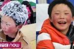 'Cậu bé băng tuyết' đổi đời sau 1 năm nổi tiếng