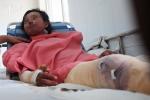 Bình gas mini phát nổ, nữ công nhân 18 tuổi bị bỏng nặng