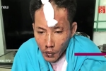 Chân dung kẻ tưới xăng đốt vợ và 2 con gái vì lý do lãng xẹt ở Đồng Nai