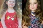 Mắc bệnh lạ, bé gái 7 tuổi bị mãn kinh sớm